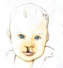 Rehabilitation of Children with Cleft Lip and Palate