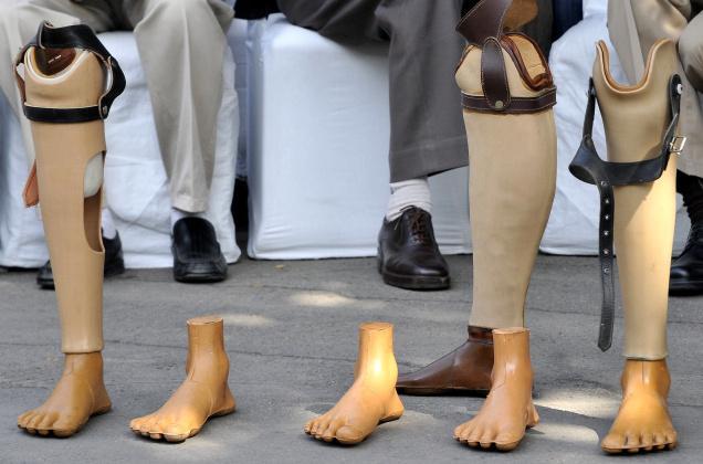 jaipur-foot இலவச ஜெய்பூர் புட் முகாம்